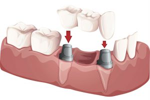Dental Implants Templestowe